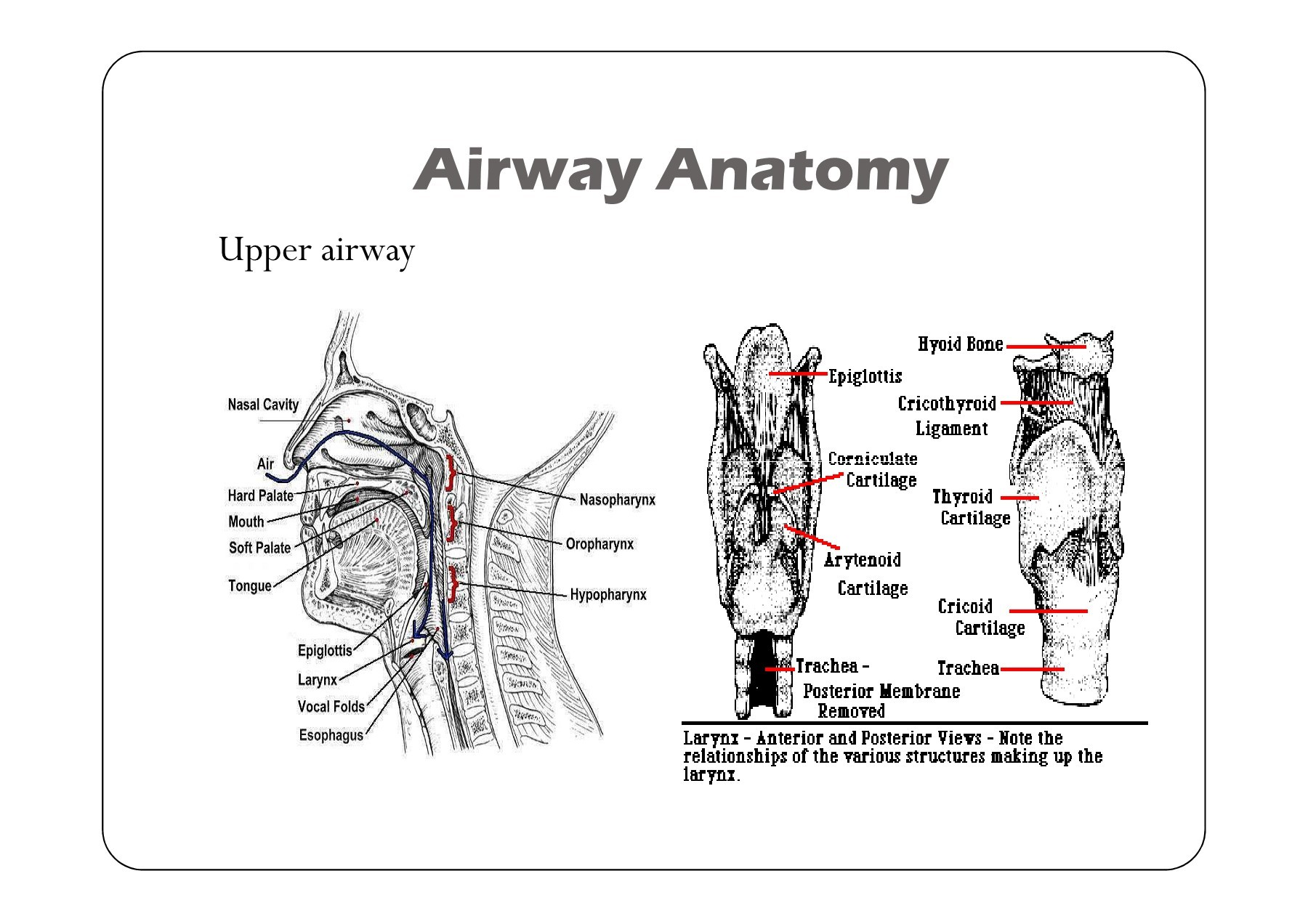 Difficult Airway and Rapid Sequence Intubation | Focusky